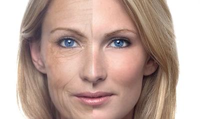 Eliminate wrinkles