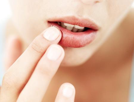 Lips of dead skin