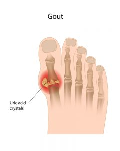 gout and uric acid crystal on big toe joint