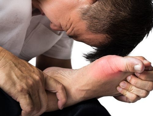 man suffering from arthritic gout on foot