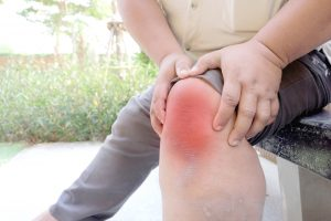 knee joint pain on obese man